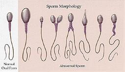 sperm-morph